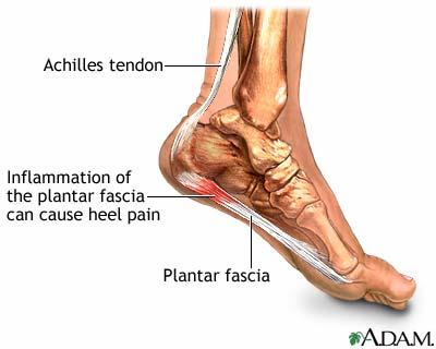 ADAM graphic of plantar fasciitis